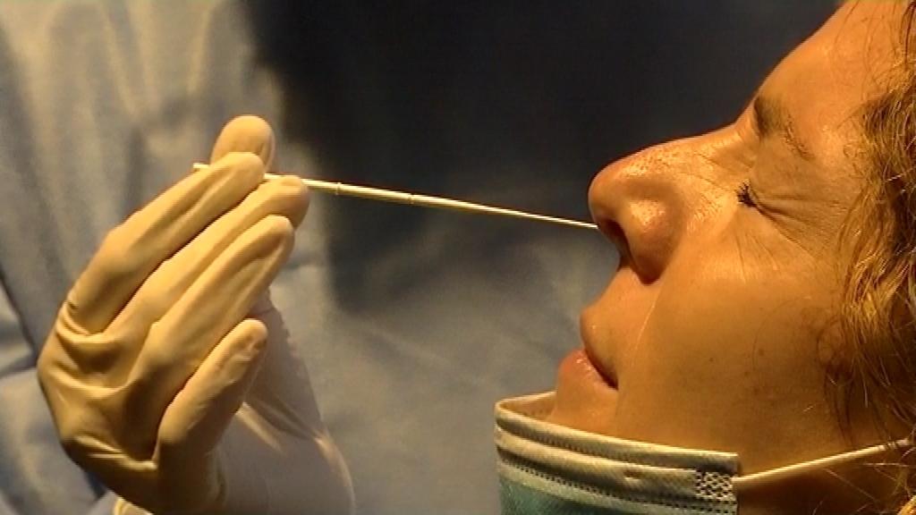 test antígens